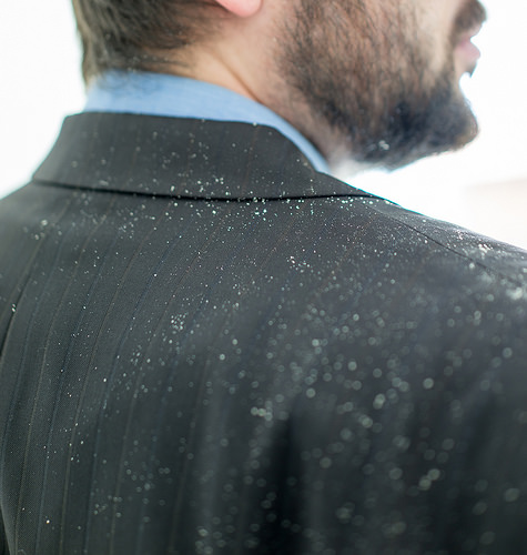 How To Naturally Get Rid Of Bad Dandruff