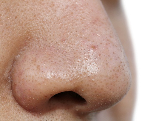 11 Tips to get rid of blackheads   Tips to Care : Health and ...