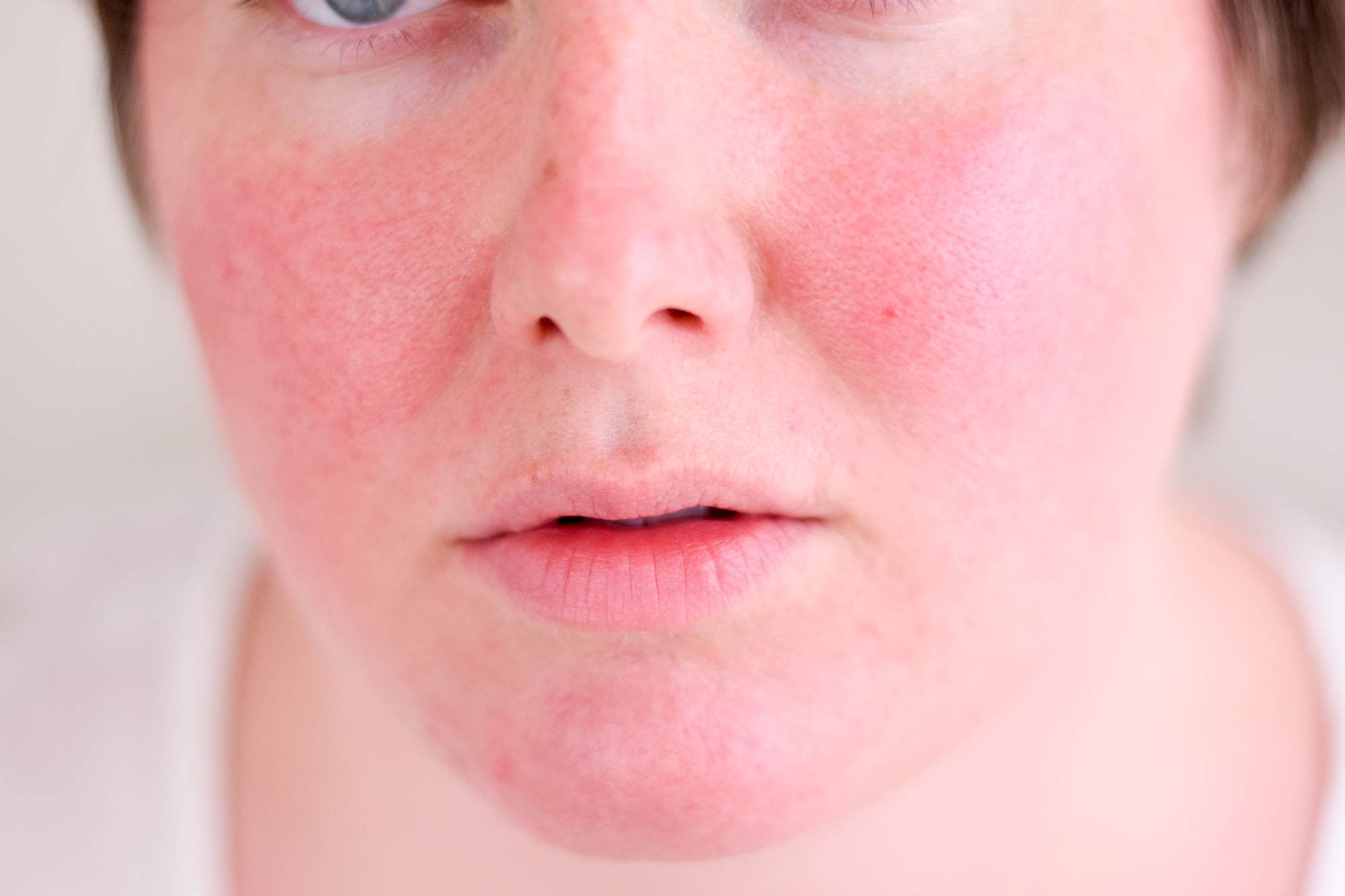 red skin on face how to get rid of it